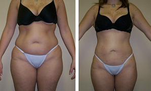 Abs Liposculpture
