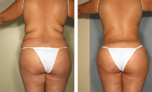 Back Liposculpture
