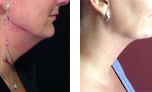 Neck/Chin Liposculpture