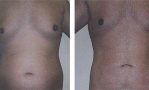 Men Liposculpture